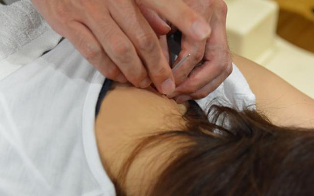 効果性の高い鍼灸治療治療実績のある鍼灸技術の提供